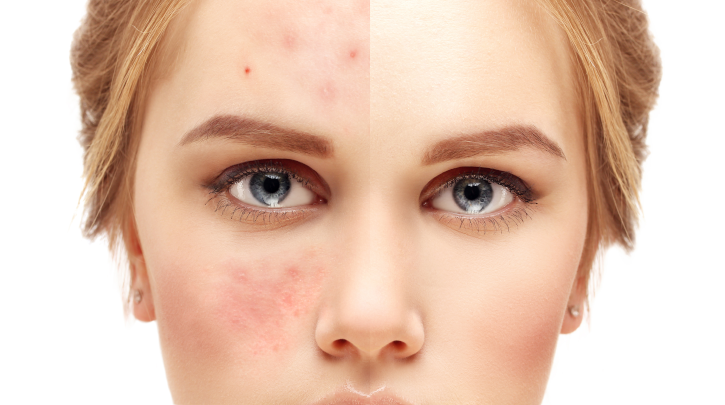 What Is Rosacea and How to Treat It