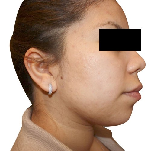 face with acne after treatment