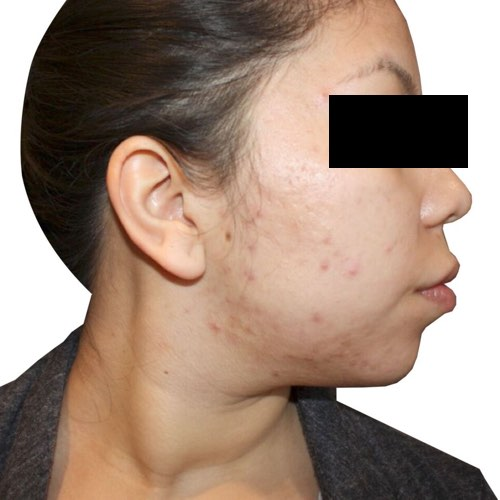 face with acne before treatment