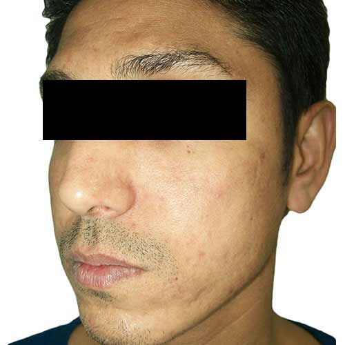 acne scar reduction - after
