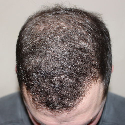 hair restoration - after