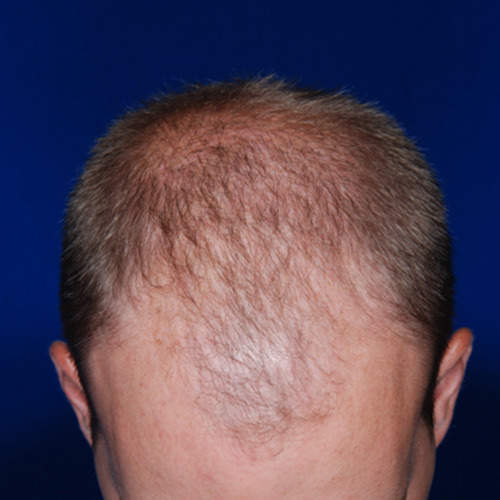 hair restoration - before