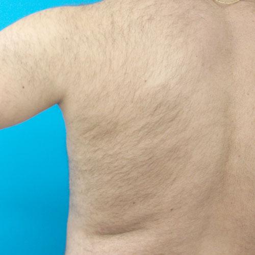 Venus Velocity Hair Removal System Venus Concept