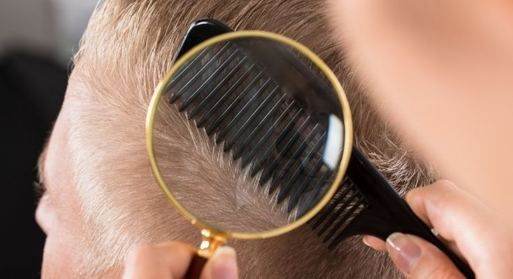 2020 Hair Restoration Industry Statistics To Consider