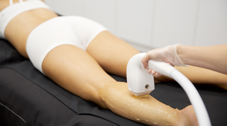 Top Developments In Hair Removal Procedures Venus Concept